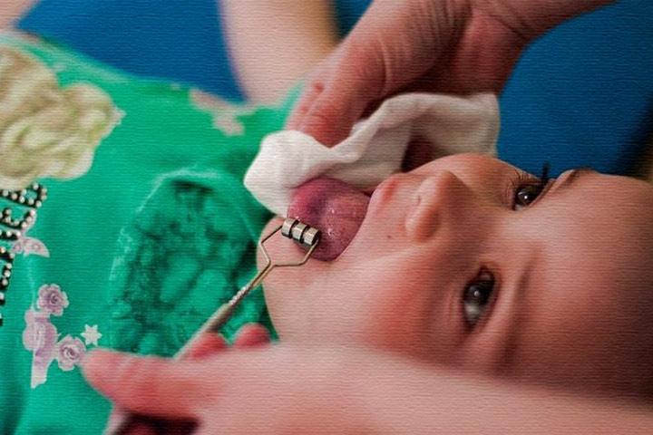 Ребенку делают массаж языка с помощью зонда