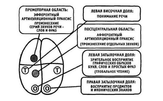Мозговые механизмы моторной алалии
