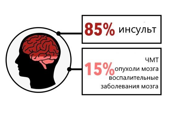 Этиология афазии