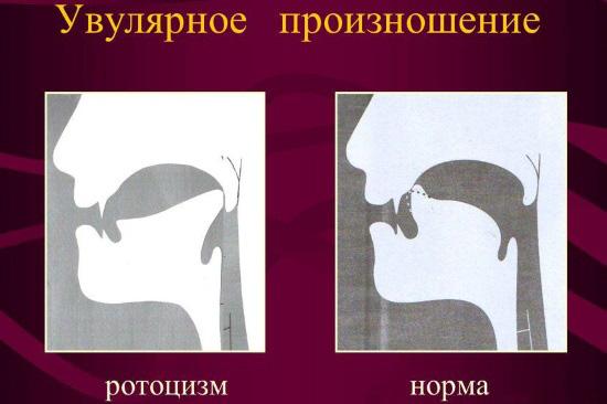 Нормальное и увулярное (горловое) произношение звука р
