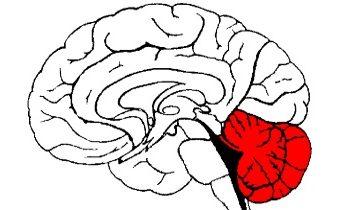 Мозжечковая дизартрия: как распознать и вылечить болезнь