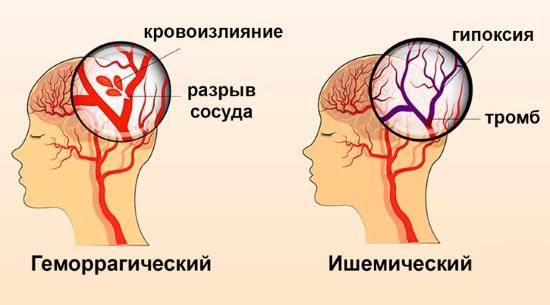 ОНМК по геморрагическому и ишемическому типу